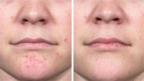 New treatments for cystic acne – Cystic Acne on Chin